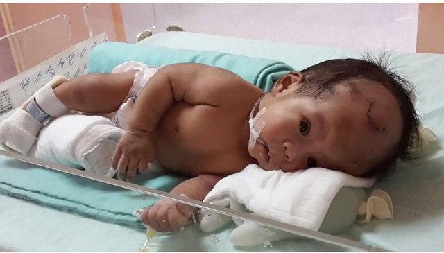 Birth Defect Versus Birth Injury